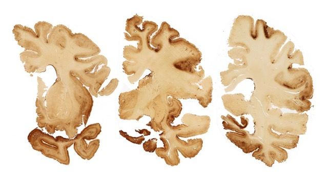 cte-brain-slice-1024x576
