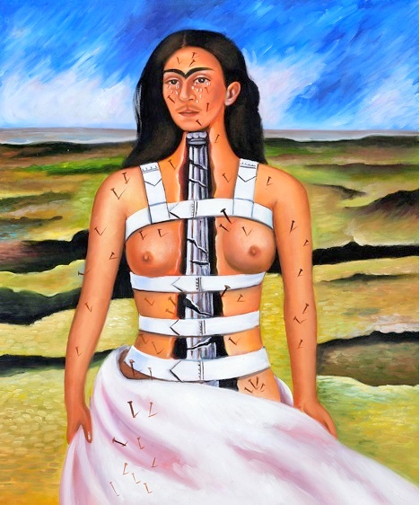 Frida Kahlo back pain
