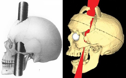 800px-PhineasGage_IronPaths_BigelowRatiuCombined