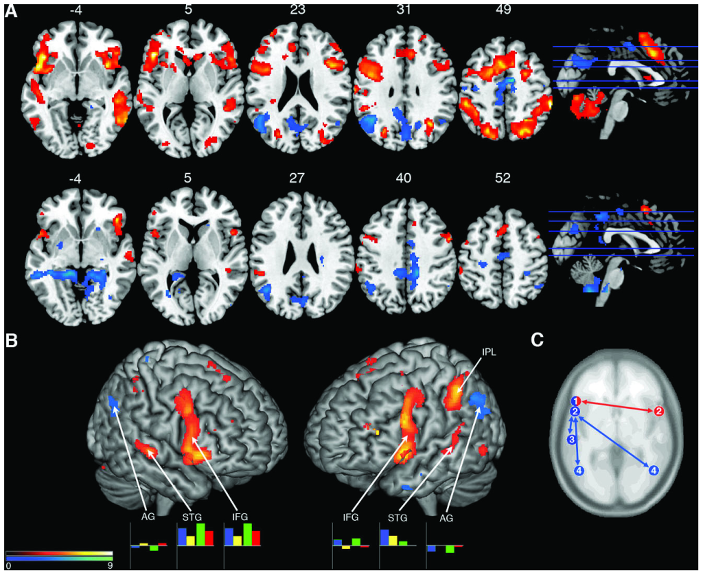 Jazz musician brains visualization of neuroimaging results_0