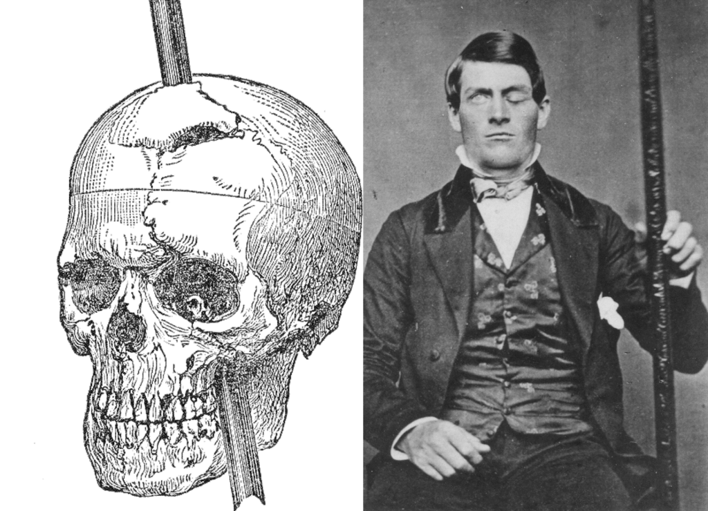 Phineas-Gage-with-skull-picture