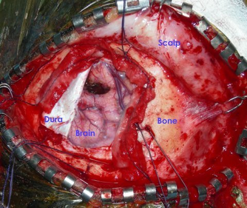 brain_surgery