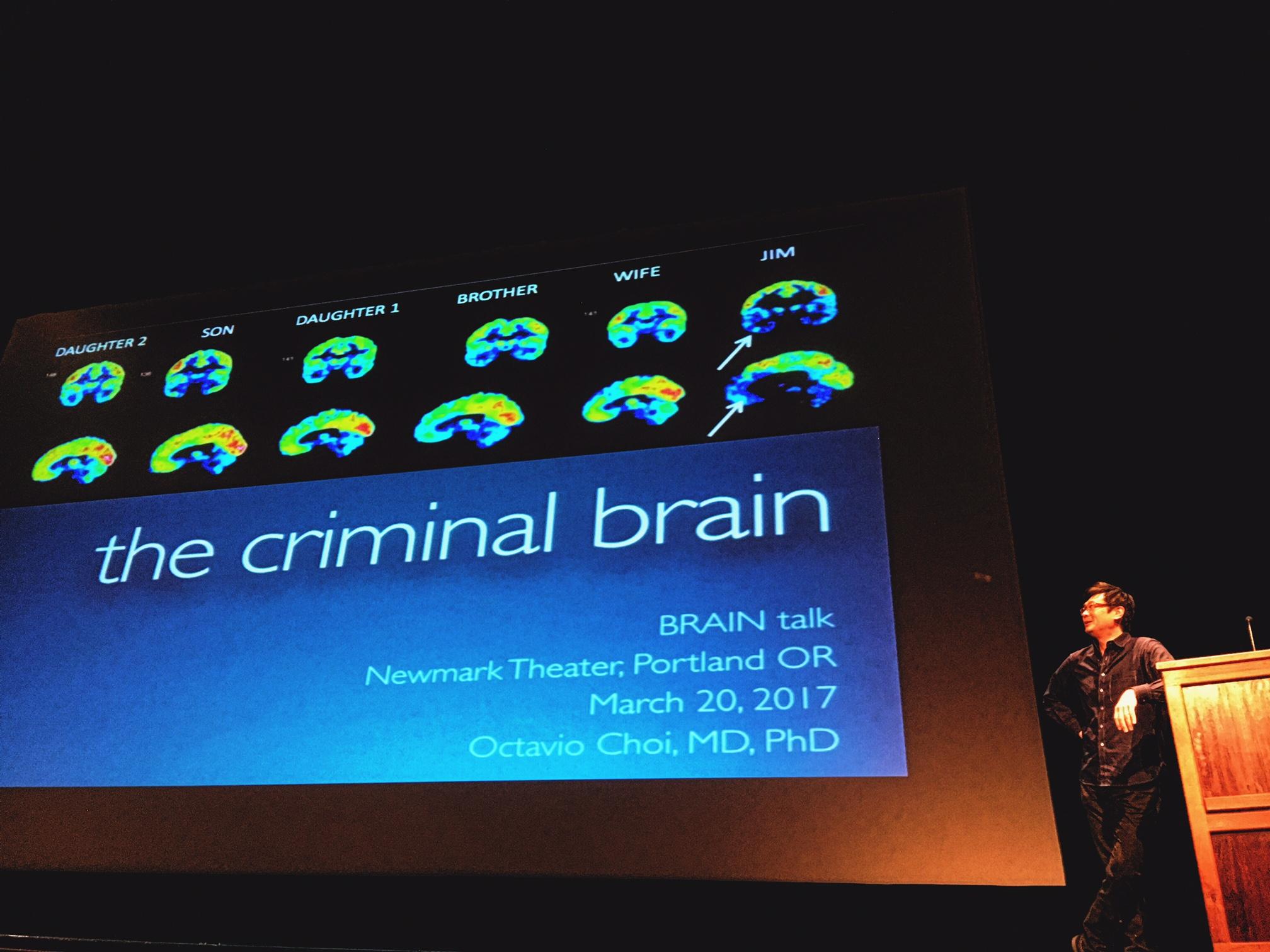 Psychopathy Brains Nw Noggin Neuroscience Outreach Group